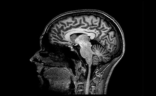 Neuroimaging-research-group