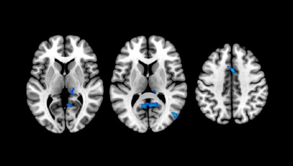 Changes in brain structure in people with insomnia